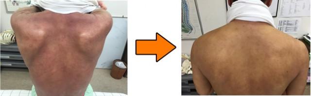 アトピー性皮膚炎の改善例 門真の男性