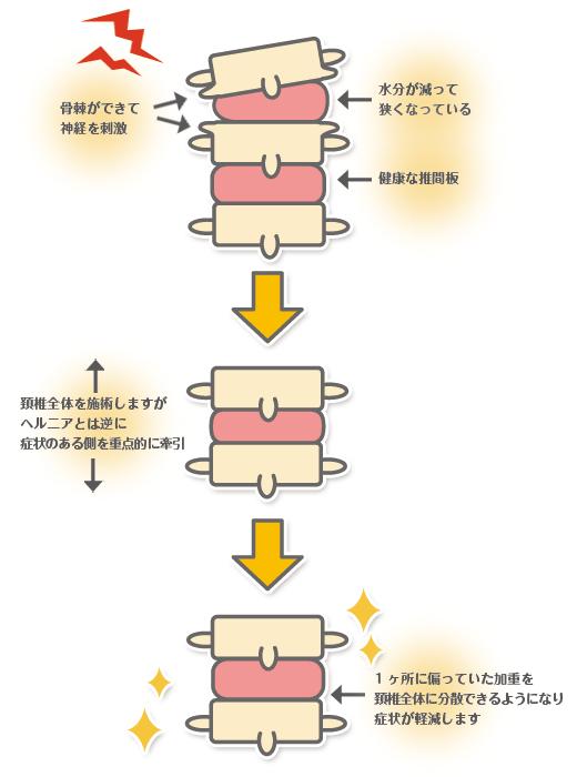 変形性頚椎症のイラスト