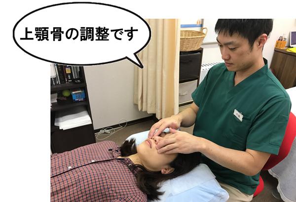 上顎骨の調整