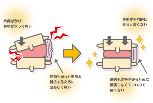 腰痛の起こるメカニズム