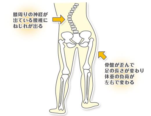 膝の歪みを説明するイラスト