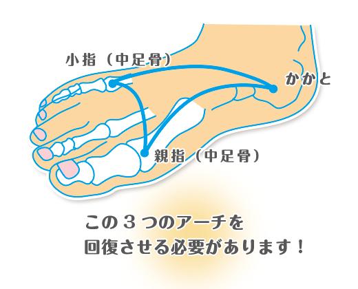 足のアーチ回復のイラスト