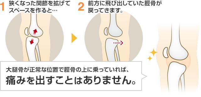 狭くなった関節を広げてスペースを作ると…前方に飛び出していた脛骨が戻ってきます。大腿骨が正常な位置で脛骨の上に乗っていれば、 痛みを出すことはありません。