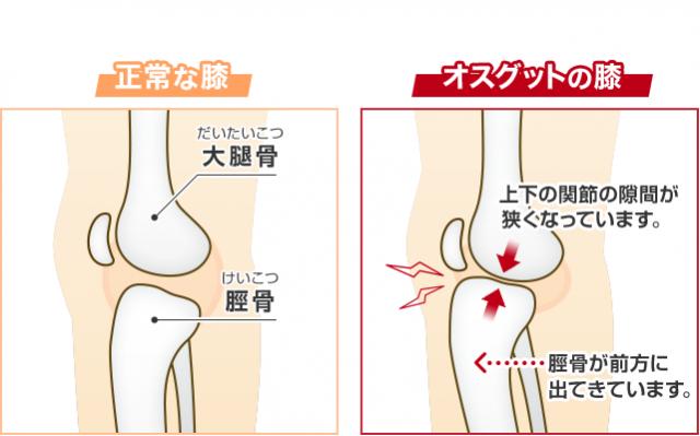 正常な膝とオスグットの膝