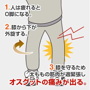 1.人は付かれるとO脚になる。2.膝から下が外旋する。3.膝を守るため太ももの筋肉が過緊張しオスグットの痛みが出る。