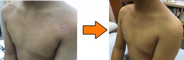 アトピー性皮膚炎の改善例 川西の男の子