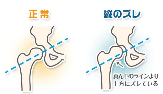 股関節の痛みの説明